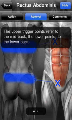 Muscle Trigger Point Anatomy Android - Free Download Muscle Trigger ...