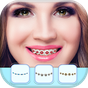 Niềng răng thực tế trình chỉnh sửa ảnh 1.1
