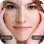 Removedor de defeito de rosto - pele lisa 1.0