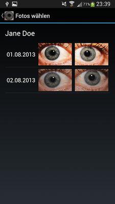 Ocular Diagnostic Image