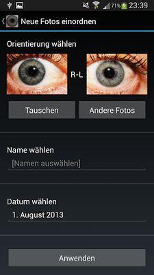 Ocular Diagnosis Image 1