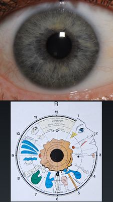 Ocular Diagnosis Image 2