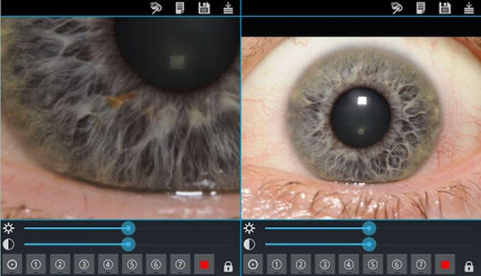 Ocular Diagnosis Image 4