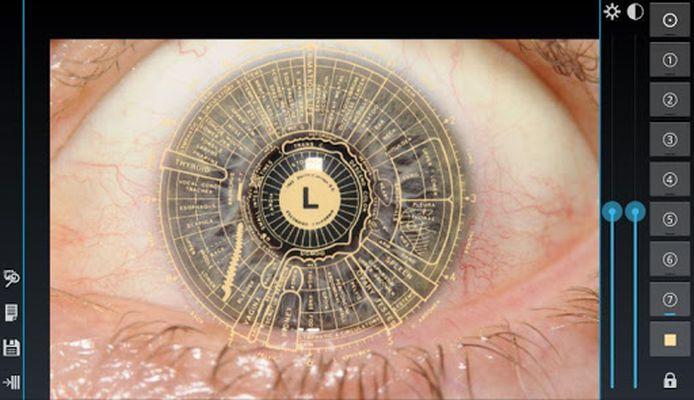Ocular Diagnosis Image 5