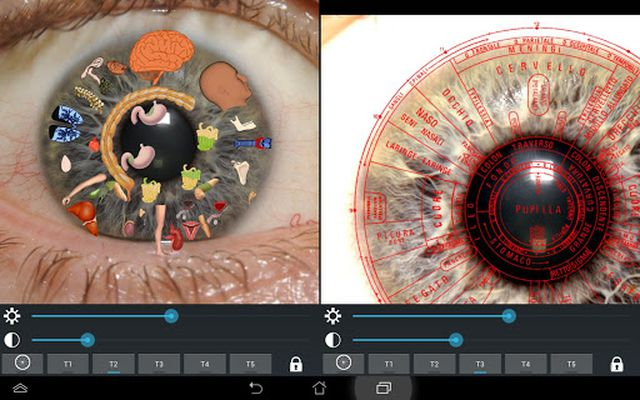 Ocular Diagnosis Image 7
