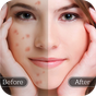 Face Blemish Remover - Smooth Skin & Beautify Face